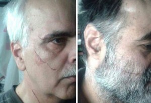 Political prisoners Saeed Madani (L) and Saeed Razavi Faqih with scars on their faces (Photo Credit: Payvand)